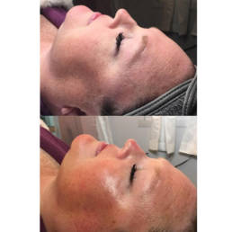 HydraFacials - Timeless Aesthetics Beauty Lounge - Before After