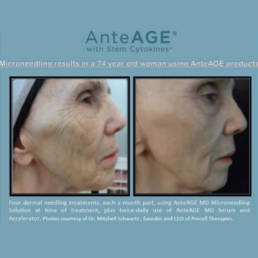 Microneedling - Timeless Aesthetics Beauty Lounge - Before After