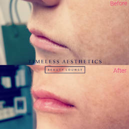 Injectables - Timeless Aesthetics Beauty Lounge - Before After